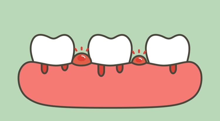 歯周病 症状