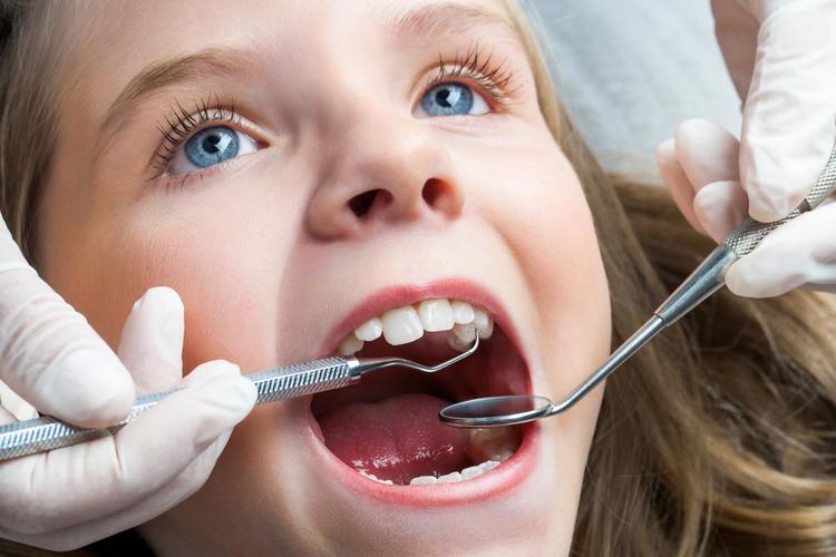 矯正が必要な歯並び
