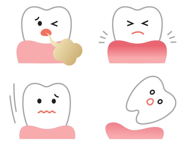 歯周病 前兆