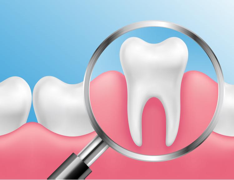 歯周病 原因
