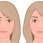 顔の歪みは矯正歯科で治せる!かみ合わせや顎関節症の治療で改善