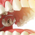 金属アレルギーでも虫歯治療は受けられる!おすすめの治療方法を紹介