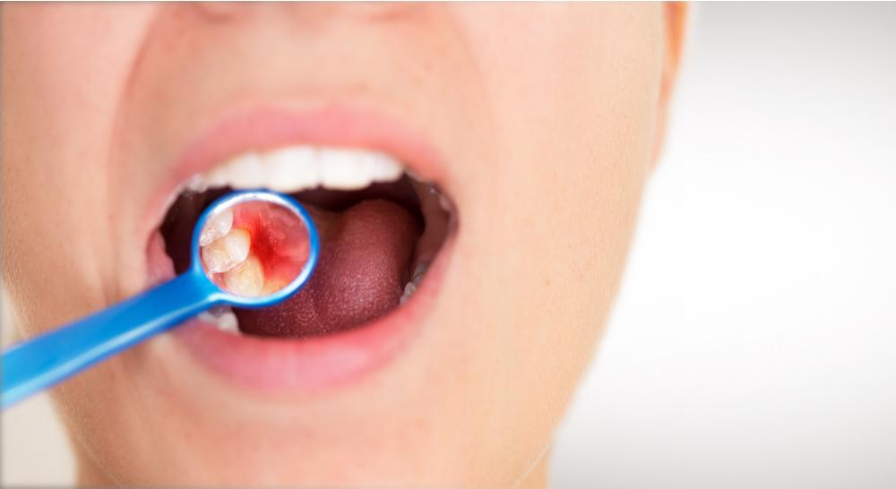 【歯周病の進行ステージと対策】気づかぬうちに進行するから要注意!