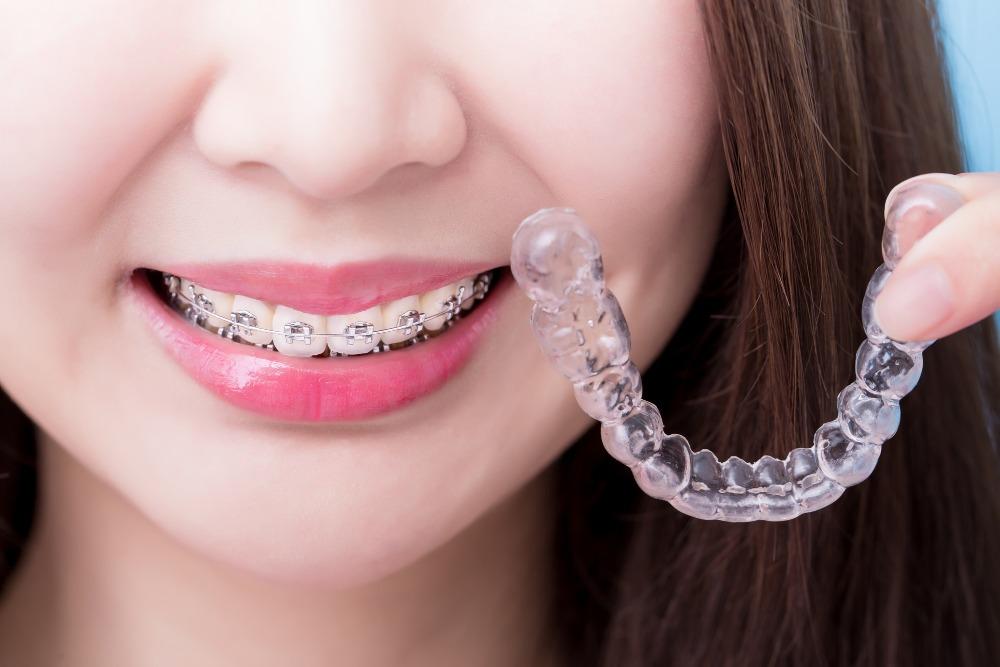 矯正歯科中の虫歯が心配なら、クリアアライナーという選択肢も