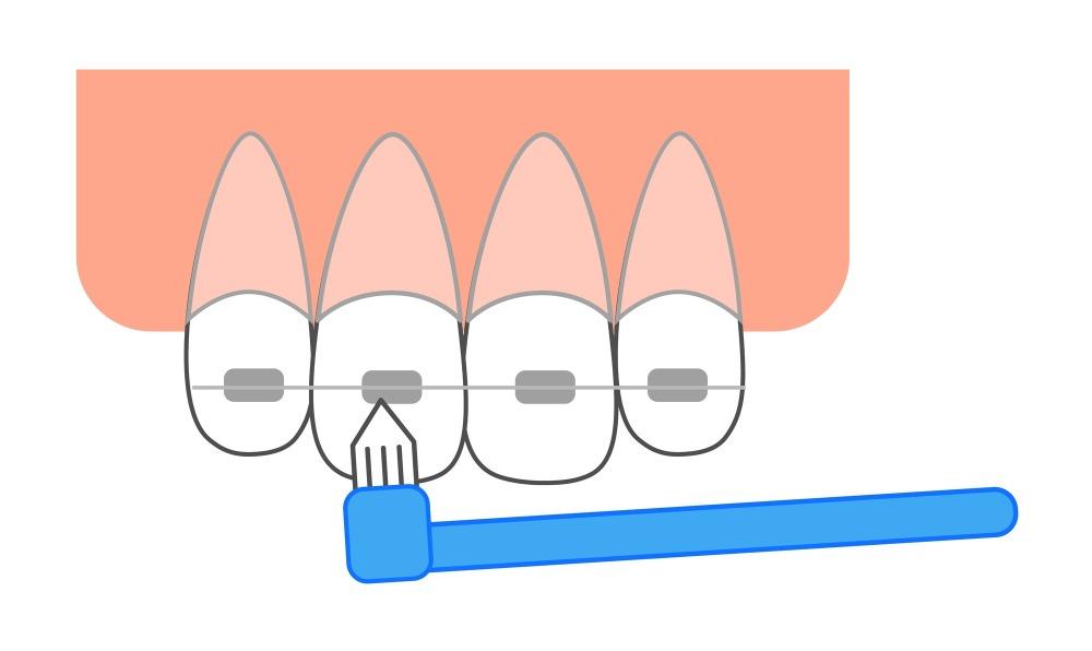 矯正歯科中に虫歯にならないための予防法