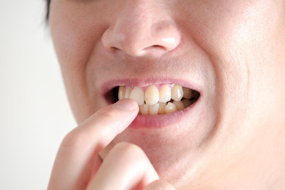 前歯のみを矯正する際の注意点